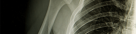 Close-up image of a chest x-ray